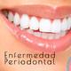 Nutribella - ENFERMEDAD PERIODONTAL