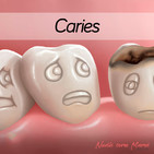 60. Caries